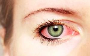 11 دلیل شایع چشم درد چشم درد