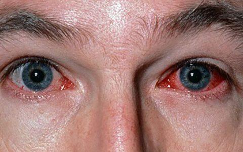 مقاومت قرنیه چشم دربرابر کرونا