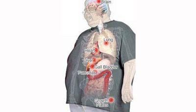 کرونا در بدن افراد چاق پنهان میشود تا در زمان مناسب ضربه بزند