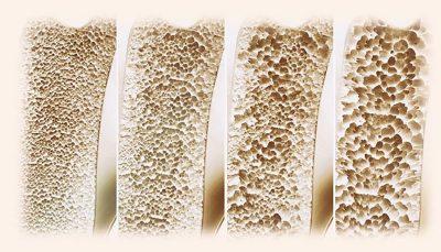 آیا امکان معکوس کردن روند پوکی استخوان وجود دارد؟