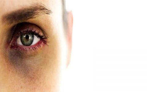 از بین بردن کبودی دور چشم با مواد طبیعی