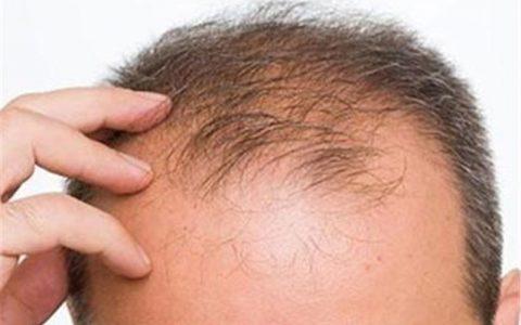 """راهکارهای طب سنتی برای جلوگیری از """"ریزش مو"""""""