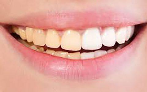 این عادتهای غلط دندانهای شما را زرد میکند