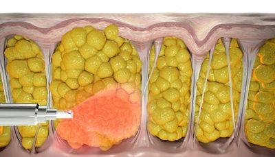 به روزترین راههای درمان سلولیت پس از زایمان