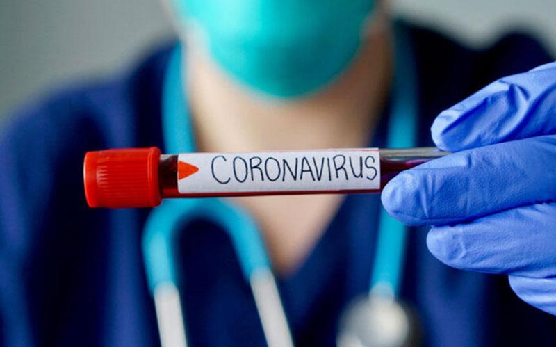 شناسایی ۸۴۰۴ بیمار جدید کووید۱۹/ فوت ۷۸ بیمار دیگر