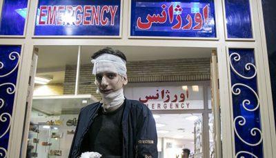 مصدومیت ۱۸۹۴ نفر در چهارشنبه سوری ۹۹/ ۵۲۷ نفر آسیب چشمی و ۹ فوتی