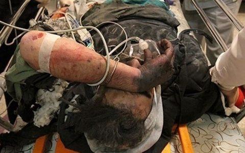 ۲ نفر در مشگین شهر بر اثر انفجار مواد محترقه مصدوم شدند