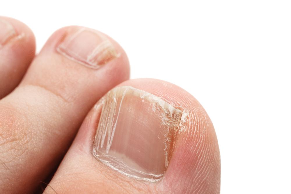دلایل ایجاد لکه سفید روی ناخنها