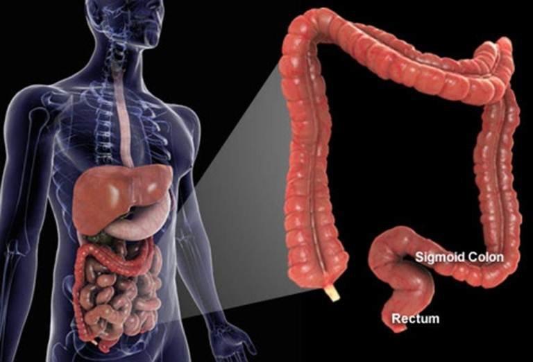 چگونه از پیشرفت سرطان روده بزرگ جلوگیری کنیم؟