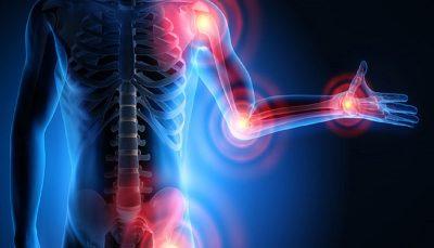 دردناکترین علائم ابتلا به آرتروز و راهکارهای درمانی آن