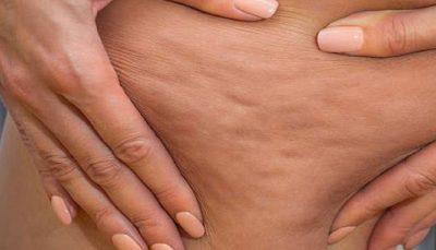 سلولیت یا عفونت بافت همبند چیست؟