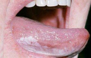 عارضهای که منجر به سرطان دهان میشود