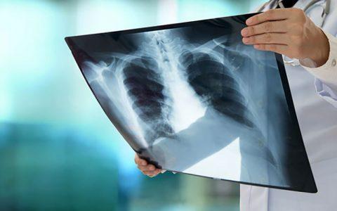 درگیری ریه در بیماران کرونایی