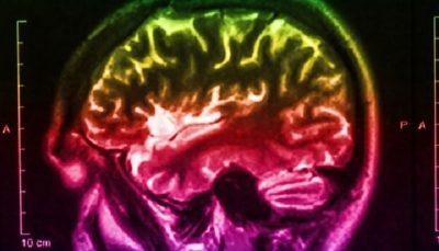 سلول های زمان در مغز انسان کشف شدند