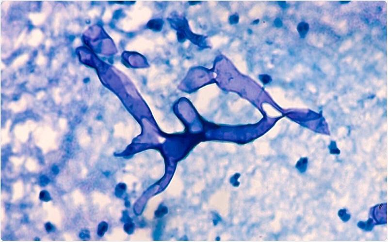 نیاز فوری به داروی آمفوتریسین B برای بیماران درگیر قارچ سیاه