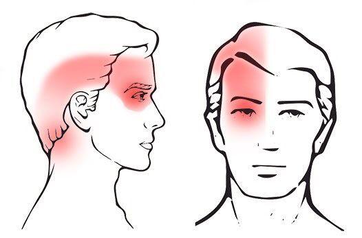 دردناکترین سردرد که میتواند صورتتان را درگیر کند