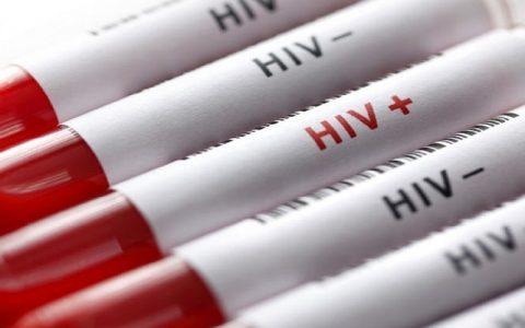 درمان آزمایشی HIV وارد تست انسانی شد
