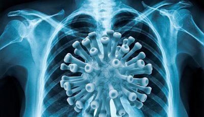 علائم پیشرفت ویروس کرونا و درگیری ریه