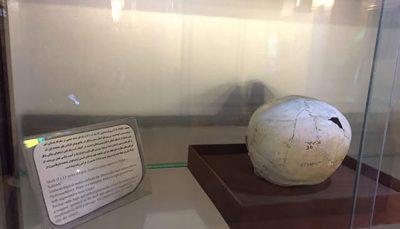 هفت اثر فاخر موزه ملی تاریخ علوم پزشکی ایران ثبت ملی شد